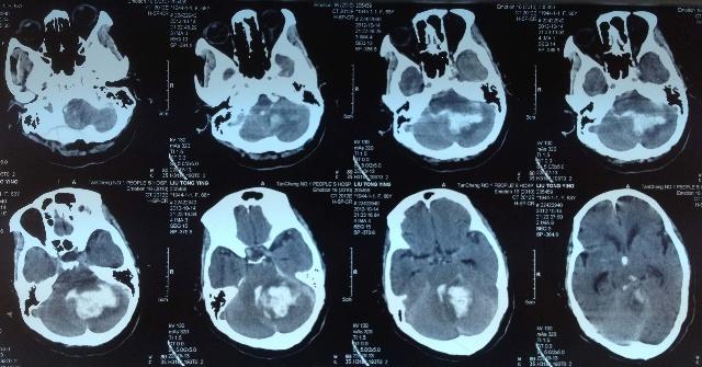 复活 需要真功夫 近期三例女性濒死型小脑出血救治成功病例赏析